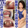 Amateur OL Haruka's silver teeth 4 tooth decay treatment during oral cavity close-up & brushing teeth