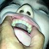 【속보】 색소와 위쪽이 눈에 띄는 치아, 설태 탑리의 벨로를 가진 '미인'시즈카 ② KITR00203