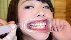 ♦ ️ [Dental fetish # 3] ♦ ️ New oral observation ⭐️ Yui Kawagoe⭐️ by oral hermit (Dr. X)‼ ️