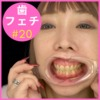 ♦ ️ [Dental fetish # 20] ♦ ️ 4K new intraoral observation ⭐️ Rin-chan 💖 The back teeth have milk teeth left 💖️ [Full version] by oral hermit (Dr. X)!